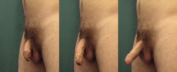 Двумя загорелыми как увеличить член при помощи операции кисок